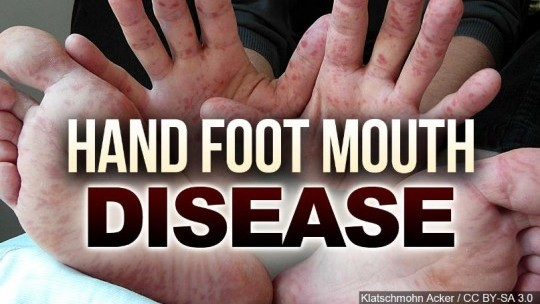 Foot to mouth disease in adults